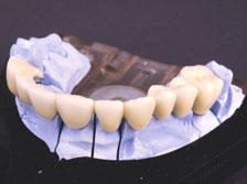 teeth_img1